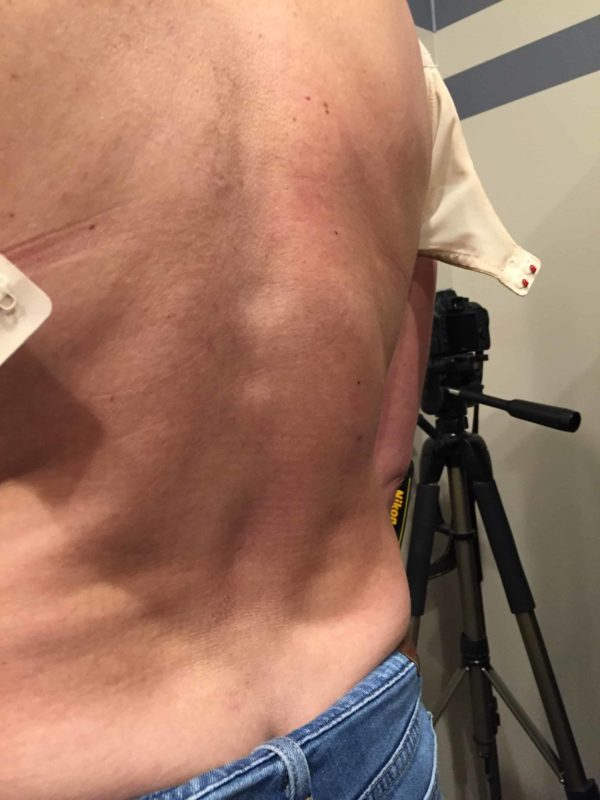 Patient with scoliosis credits Massage therapist for quality of life